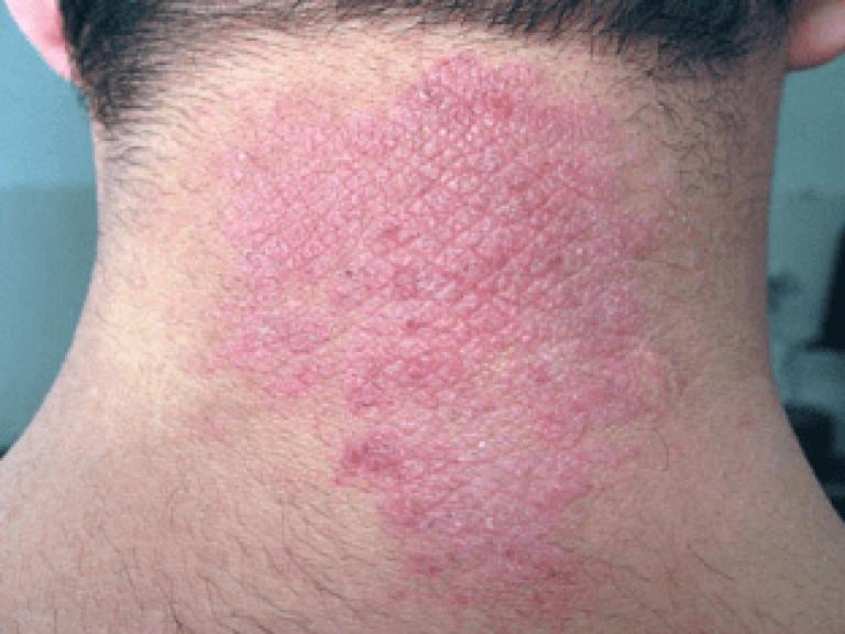 Lick dermatitis neurodermatitis — photo 6