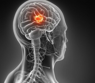 В Израиле открыли новый метод лечения рака мозга