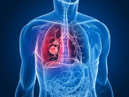 В Израиле разработан новый анализ для выявления рака легких