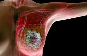 В Израиле на четверть снизилась смертность от рака груди