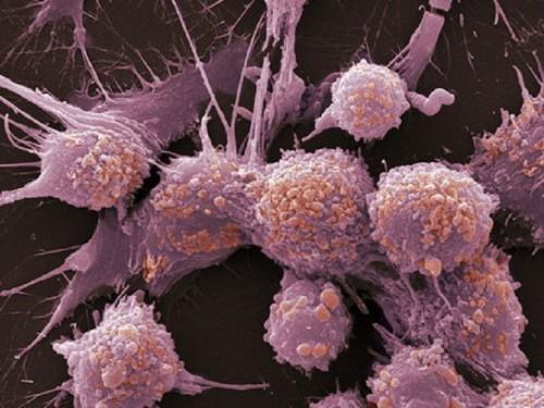 Заболеваемость раком выросла на 33% за последние 10 лет